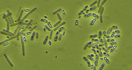 Bacillus thuringiensis. Control plaga tomateras